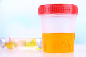 Close-up of a plastic cup with a red lid containing a urine sample.